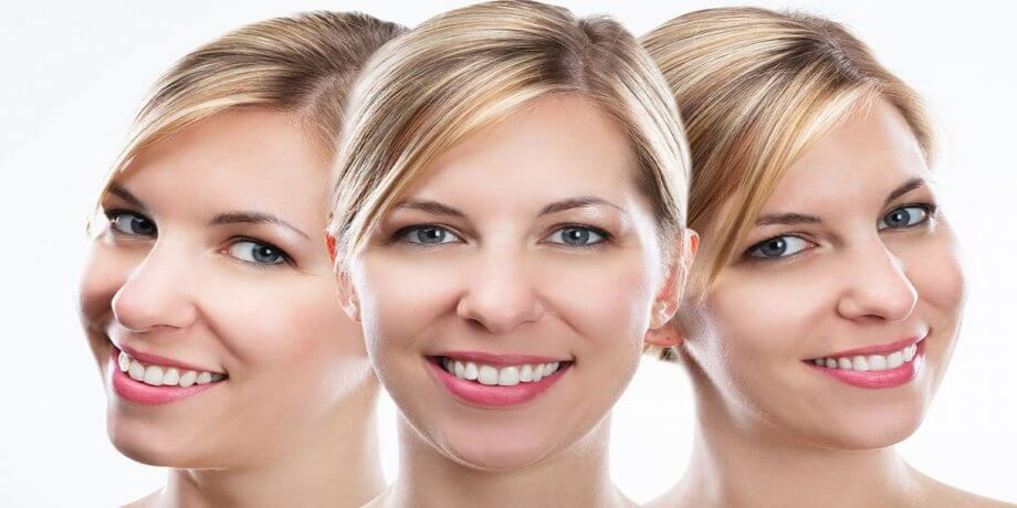 3 Considerations for a Complete Smile Makeover
