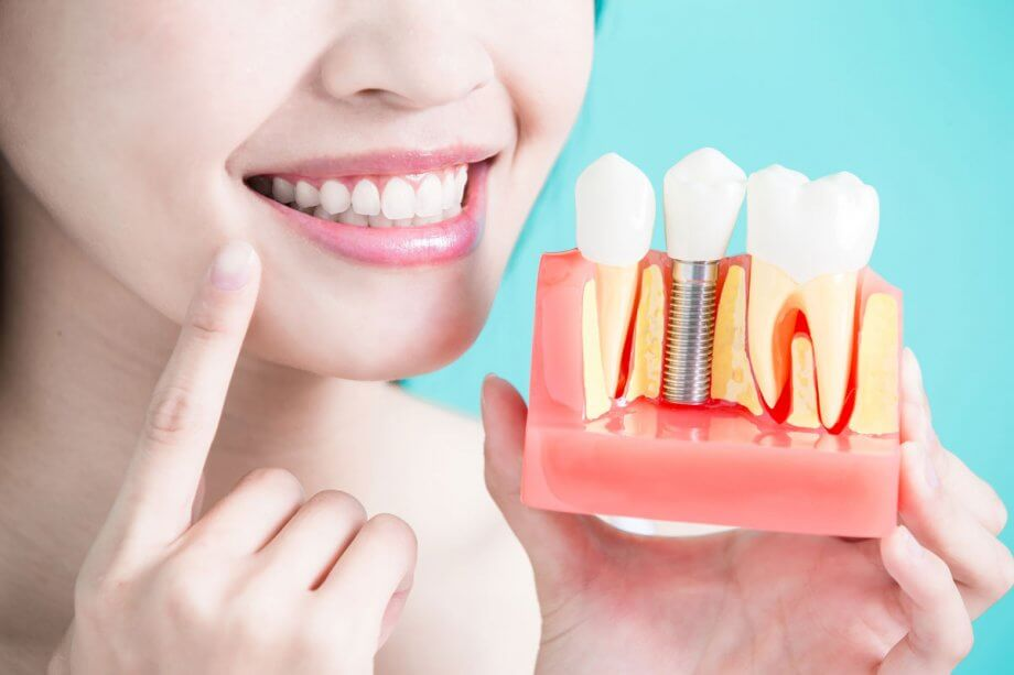 The 5 Benefits of Dental Implants