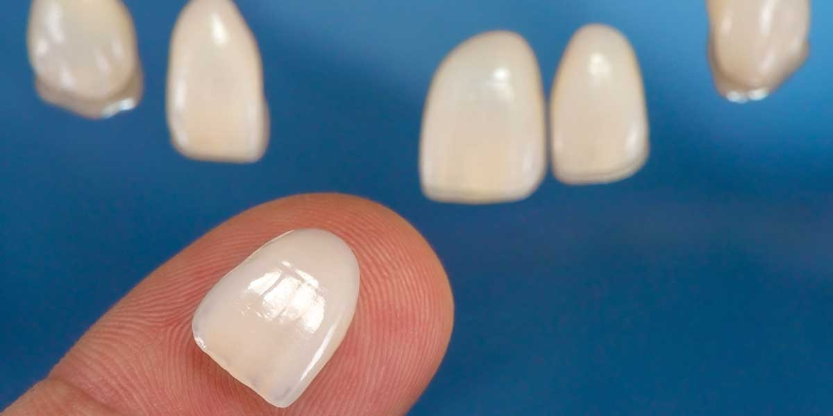 Porcelain Veneers in Cupertino, CA