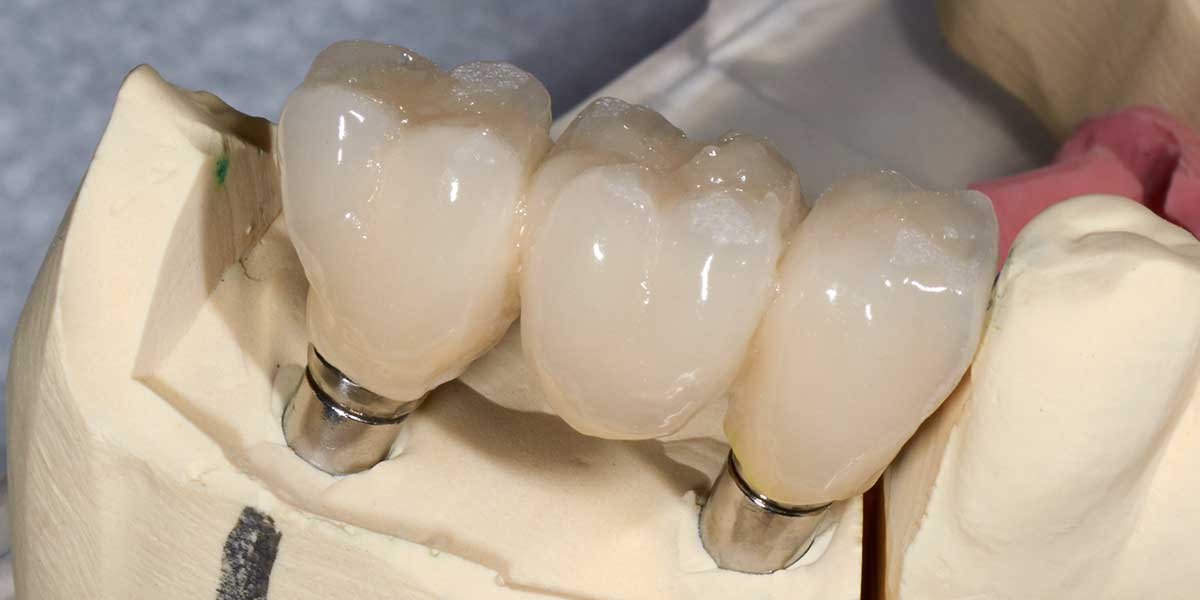 Dental Implant Supported Bridges in Cupertino