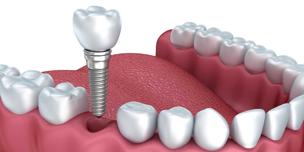 Single Dental Implants in Cupertino, CA