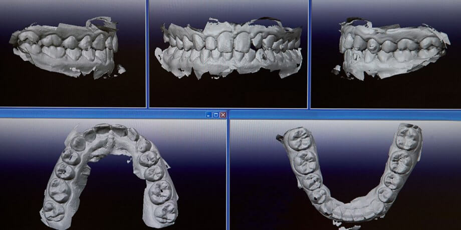 3-D Graphic Upper and Lower Dental Arches