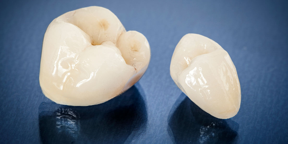 Dental Crowns in Cupertino, CA