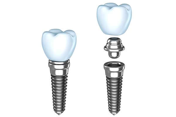 Dental Implants Graphic Illustration