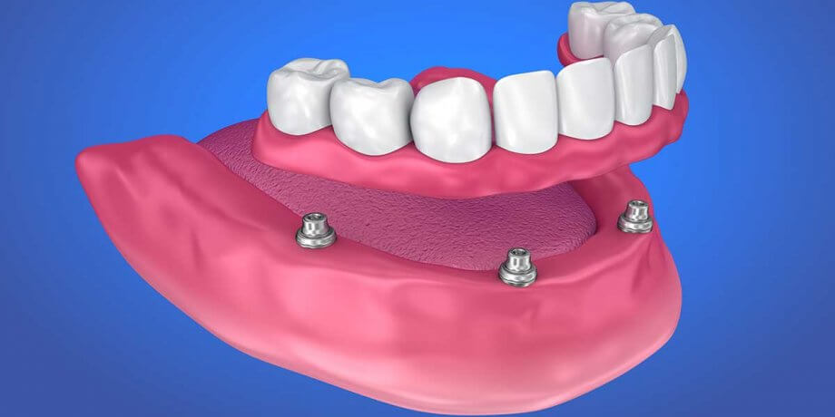 Traditional vs Implant Supported Dentures