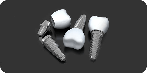 Dental Implants in Cupertino, CA
