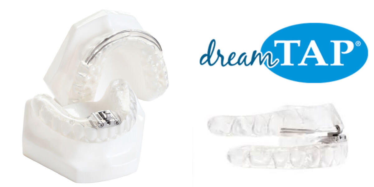 Sleep Apnea Treatment - Dream Tap