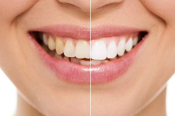 Teeth Whitening Before & After in Cupertino, CA