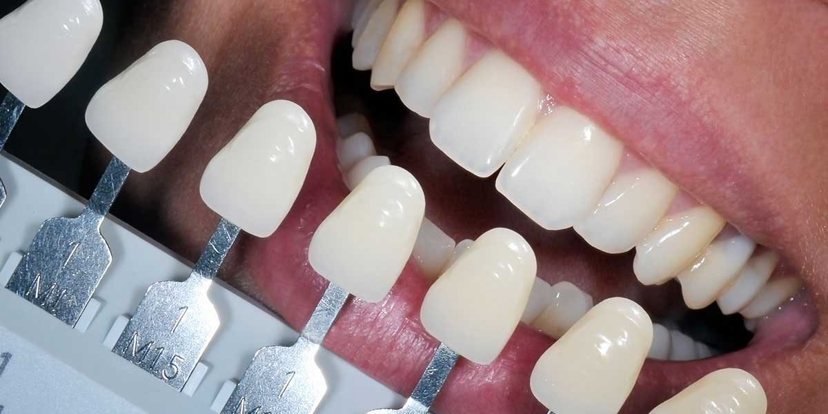 Dental composite filling color guide