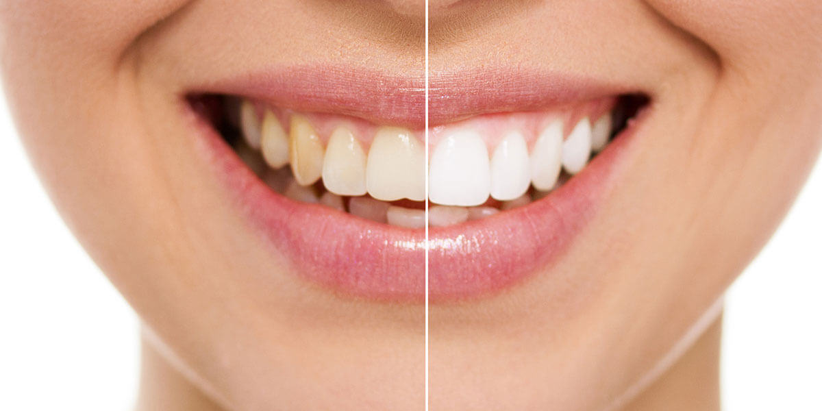 Before & After Teeth Whitening in Cupertino